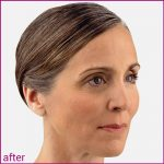 Voluma Before After (after)