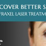 Frequently Asked Questions | Fraxel Laser Treatments