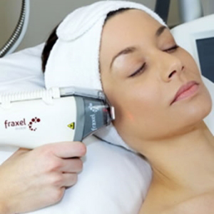 How to Get Rid of Dark Spots with Fraxel