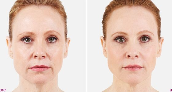 Juvederm voluma before and after santa monica